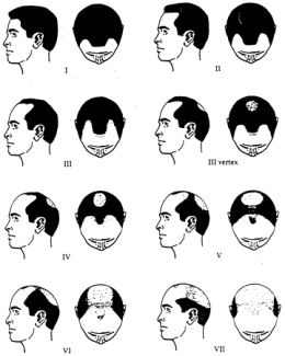 Olio di Moringa e Moringa in capsule contro caduta di capelli, alopecia e calvizie