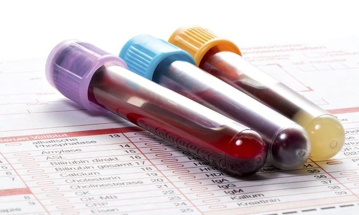 Cosa sono i linfociti