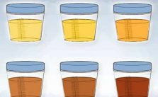 Urine scure o pipì scura cause, sintomi e cosa fare