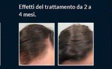 Follixin funziona contro la caduta dei capelli?