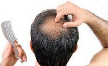 Caduta dei capelli in uomini e donne, cause e rimedi naturali