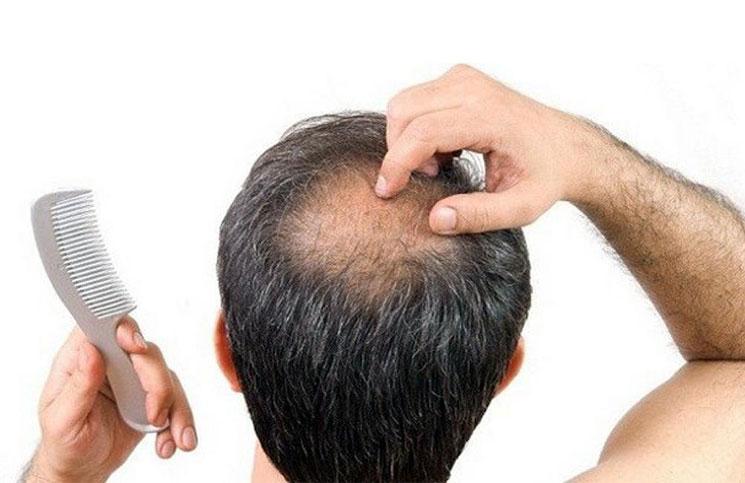 Caduta dei capelli in uomini e donne 742dc7f38c63
