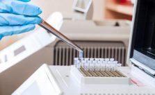 Proteina C reattiva alta: cause e cosa fare