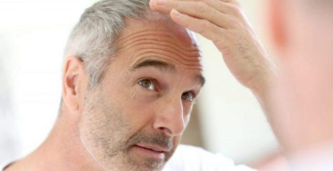 Integratori per capelli grigi