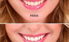Pulizia denti dal dentista o fatta a casa?